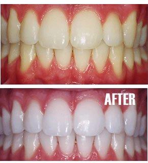 washington-dc-teeth-whitening-1