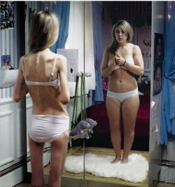 243832085092_anorexia
